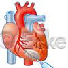 Herzinjektion
