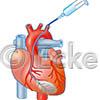Herzkranzinfusion