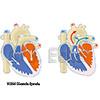 Diastole Systole