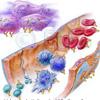Angriffsorte Antikoerper Immunglobuline T-Zelle Erythrozyten Makrophage B-Zellen Gefaess-Endothel Gewebezellen