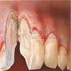 Parodontose Parondontitis