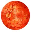 Retina Hypoxie