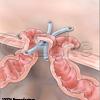 Transversostomie Querschnitt