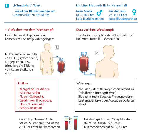 epo blood doping - blood doping began to appear in the 1970's after ban on steroids and other ergogenic aids were put in place blood doping origin - doping derives from dutch word.